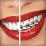 Spangen auf die Zähne