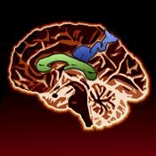 Cerebrii
